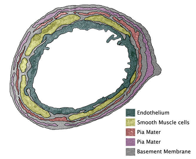 The proposed arrangement of leptomeningeal layers around a white matter artery